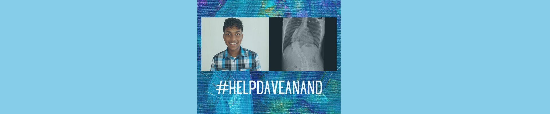 #helpdaveanand through SpineHope